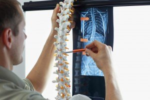 Scoliosis and Chiropractic
